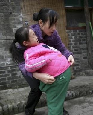 Seorang Anak Perutnya Mmebunci Hingga 1 Meter [ www.BlogApaAja.com ]